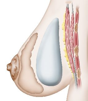 Augmentation_mammaire_Prothese_premusculaire