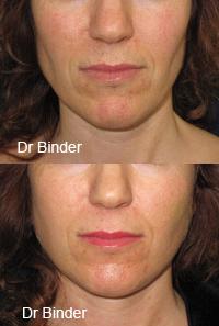 Lipostructure ou lipofilling du visage