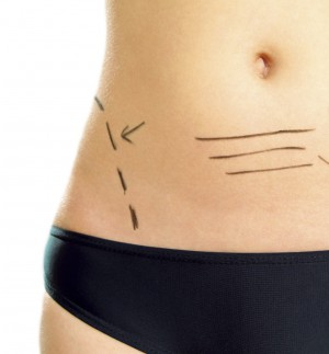 Marked abdomen for plastic surgery