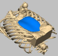 Pectus excavatum : simulation