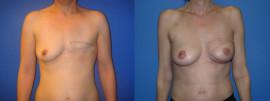 Reconstruction du sein par lambeau de grand dorsal / cas clinique 1