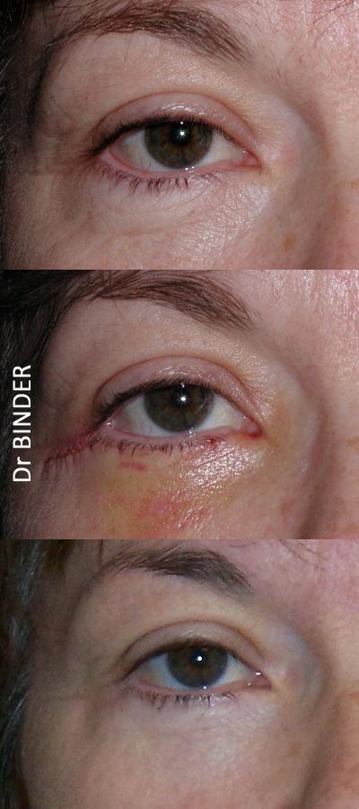 Blépharoplastie inférieure : évolution de la cicatrisation